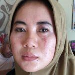 Buntut dari Penganiayaan, Oknum Kades di Sumenep Dilaporkan ke Polisi